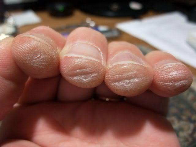 Durerea degetelor la chitaristi incepatori