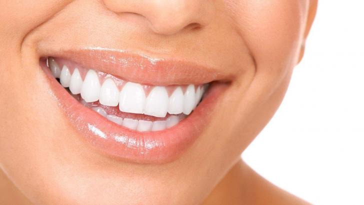 Vrei sa ai dintii mai albi?
